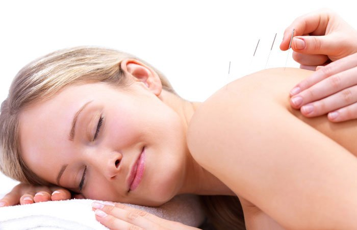Acupuncture in Richmond Hill